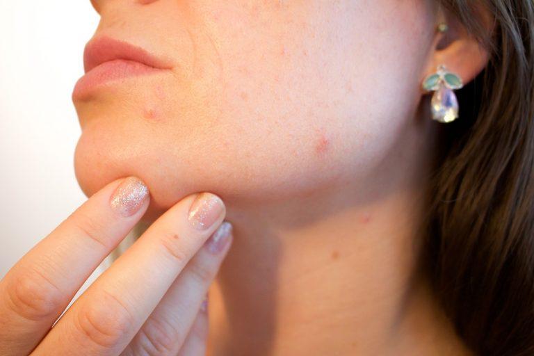 acne dermatologista consulta